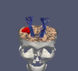 Neurocirujanos sevillanos preparan su intervenciones quirúrgicas con bio,modelo